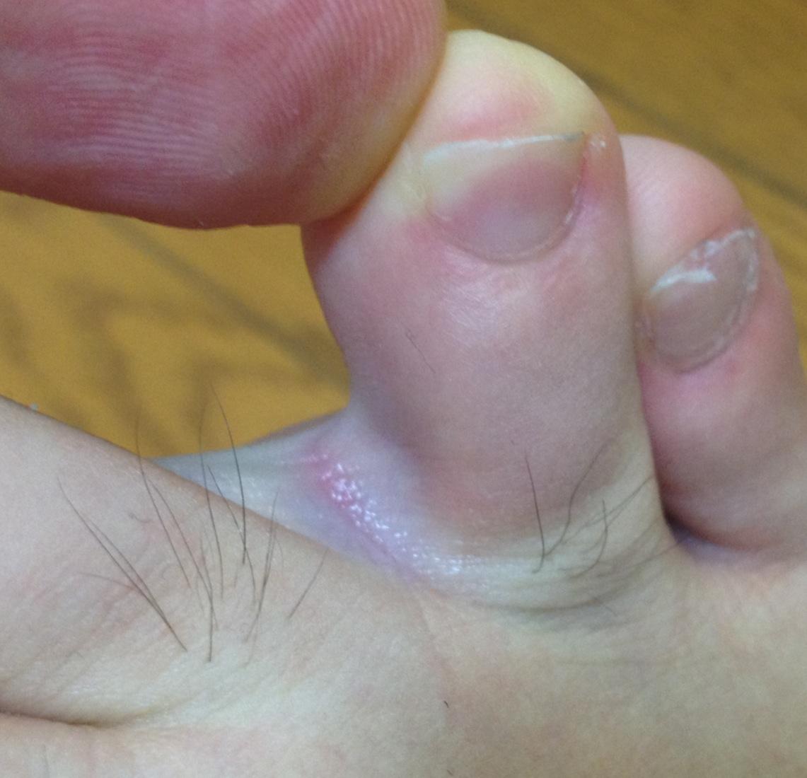 水虫 指の間
